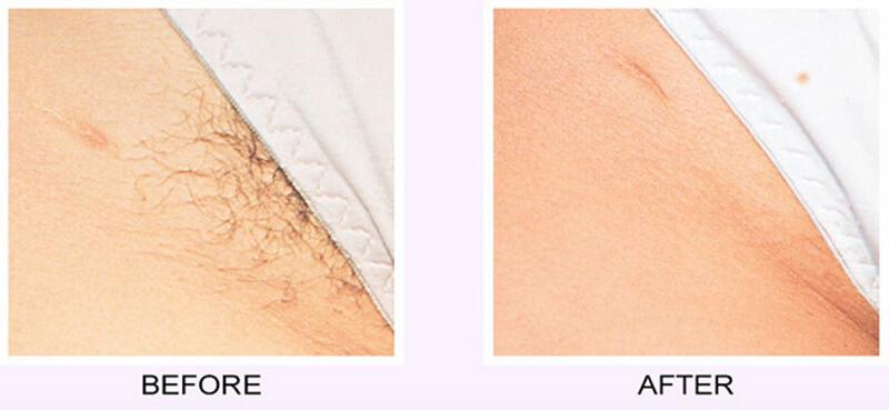 kết quả trước và sau khi cắt tỉa lông bướm